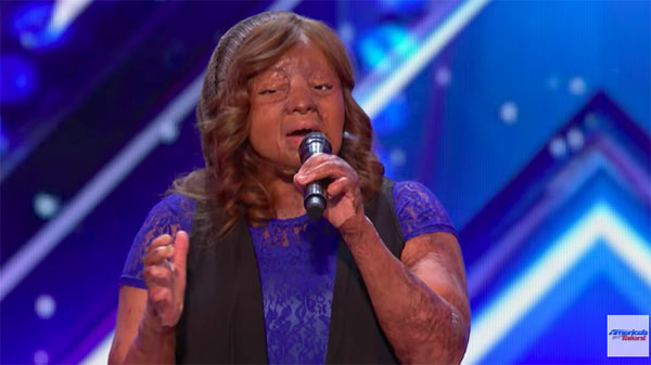 Plane crash survivor Kechi Wows with 'Thinking Out Loud' on America's Got Talent 2017