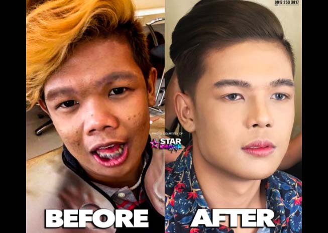 Xander Ford: Name of the Clinic and Doctor who made Marlou Arizala's cosmetic enhancements